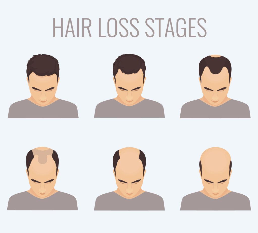男性掉髮與禿頭