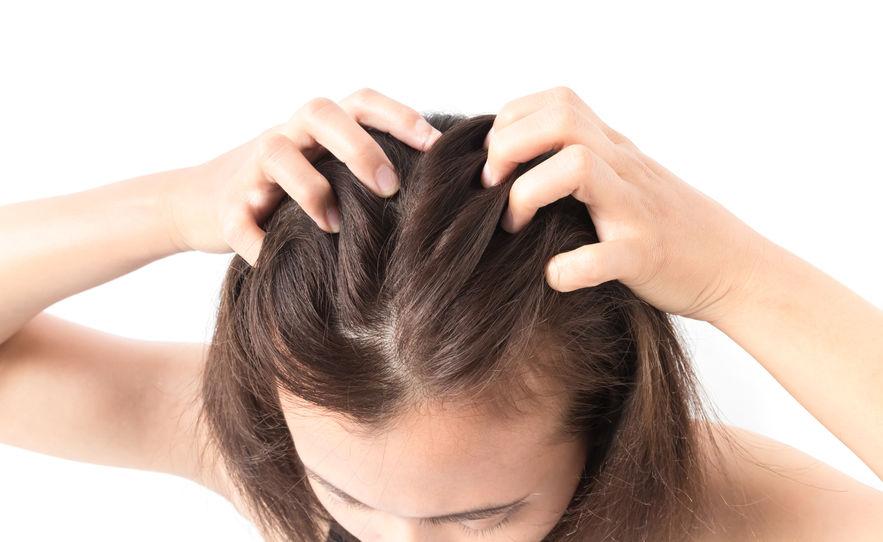 瑞安診所禿頭掉髮治療方式