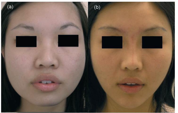 臉部注射消脂針效果