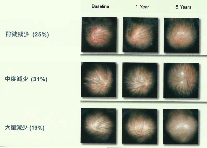 全頭照片評估顯示,大多病患者在5年內都不斷地掉髮